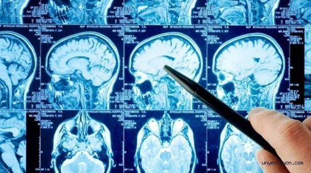 60 Yıl Boyunca Beyninin Yarısı Olmadan Yaşadı